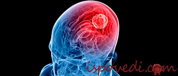Лечения мозга